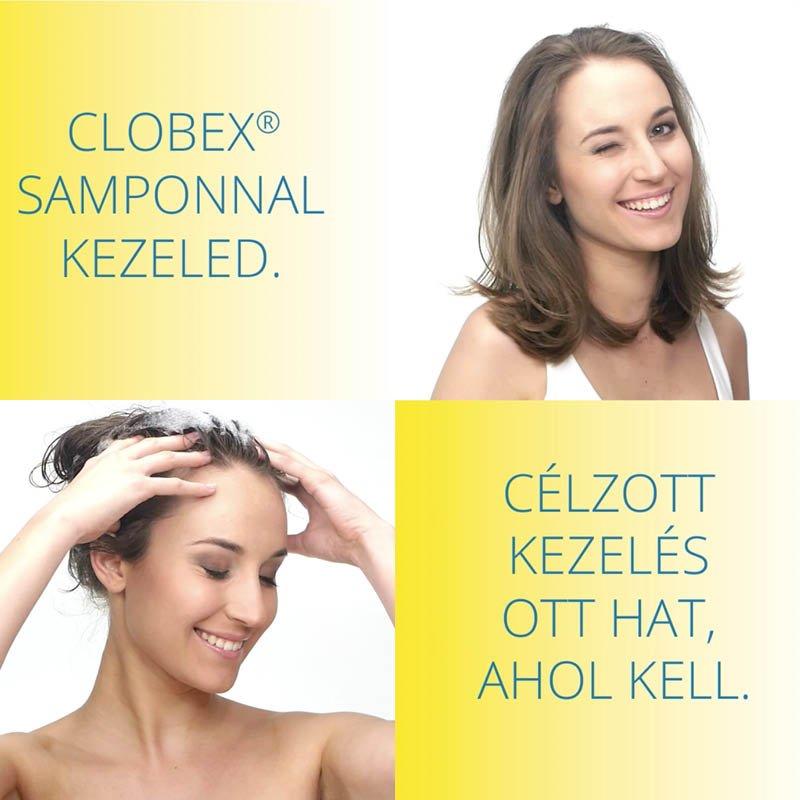 Clobex reklám